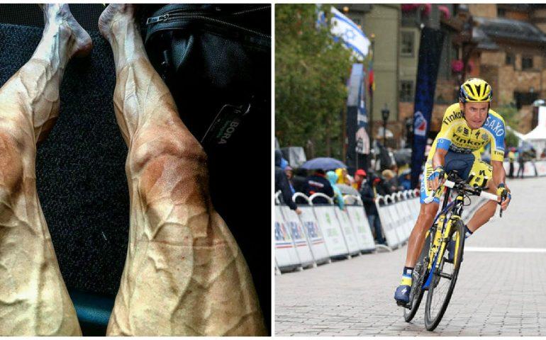 Tour de France, le foto shock delle gambe di Poljanski