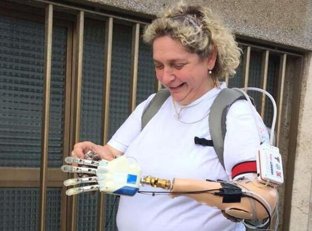 Mano bionica dotata di tatto impiantata a italiana per la prima volta