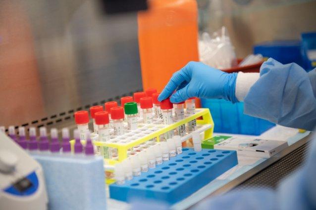 Covid-19, in Sardegna i nuovi casi sotto quota 100: sono sei le vittime del virus